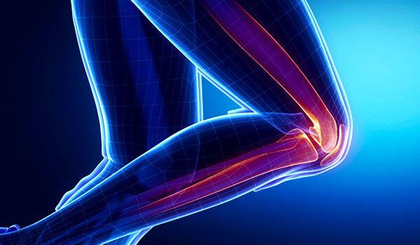 patello-femoral-syndrome-graphic