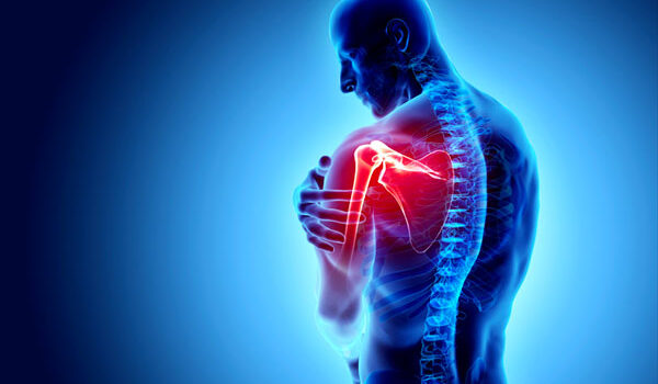 shoulder-impingement-syndrome-graphic
